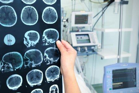 Ученые из РФ смогли одолеть рак спомощью витамина В2